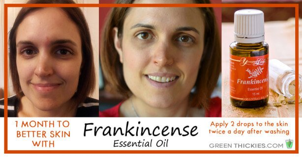 1 month to better skin with Frankincense essential oil