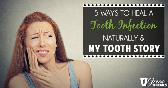 5 Ways To Heal A Tooth Infection Naturally (and my tooth story)